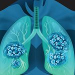 EC green-lights MSD's Keytruda combo for lung cancer