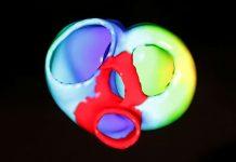 New drug options, risk factors added to U.S. heart guidelines