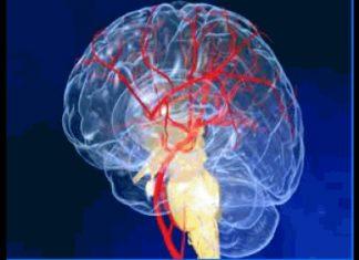 Les facteurs de risque des patients hospitalisés pour un premier épisode d'accident vasculaire cérébral en France