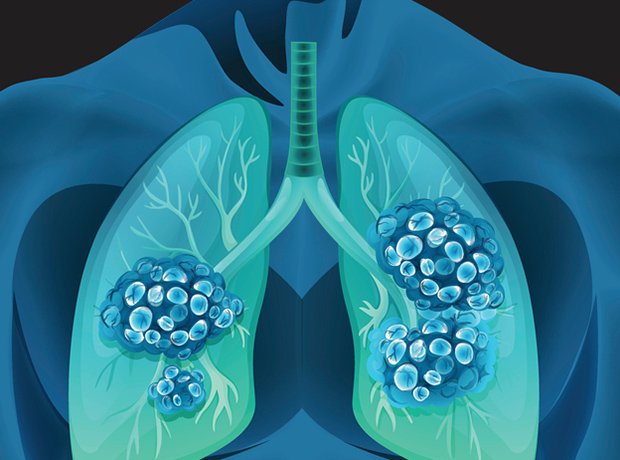 Alunbrig recommended by NICE for non-small-cell lung cancer