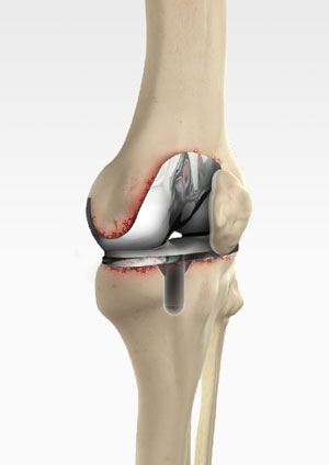 FDA permits marketing of first diagnostic test to aid in detecting prosthetic joint infections